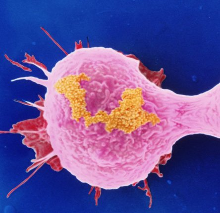 Dividing Breast Cancer Cells